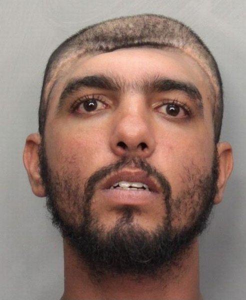 Преступник Майами, у которого отсутствует полчерепа (4 фото)