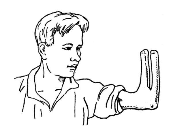 Рука Крукенберга (6 фото)