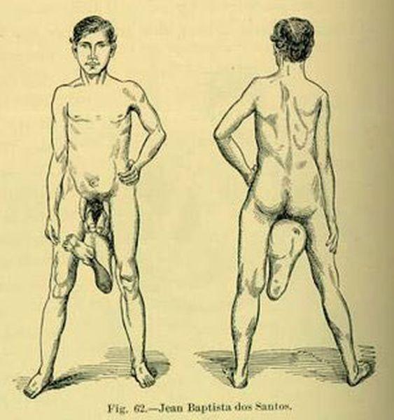 Человек с 2 пенисами