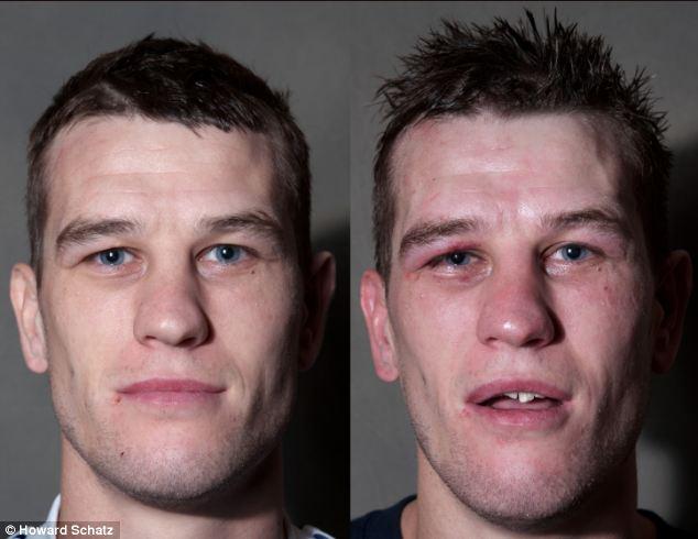 Boxeadores, antes y después de la lucha 4