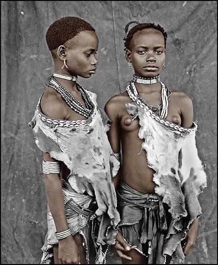 1633 Фотосерия Боль и красота