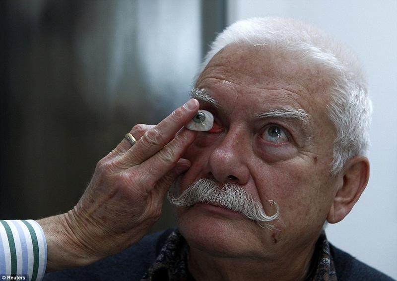 люди с протезом глаза фото образом